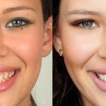 beleza_dentes